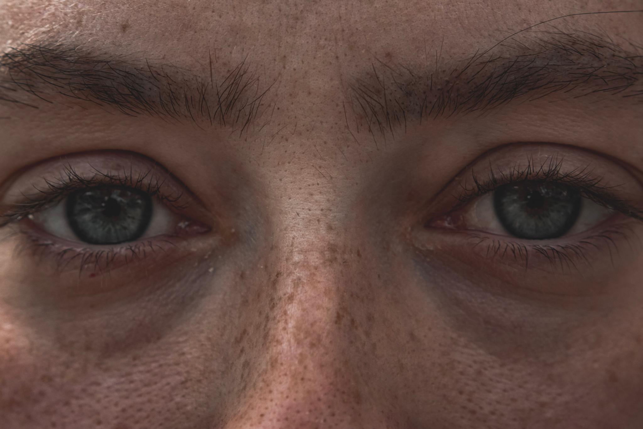 Fräknig, blåögd person i fokus.
